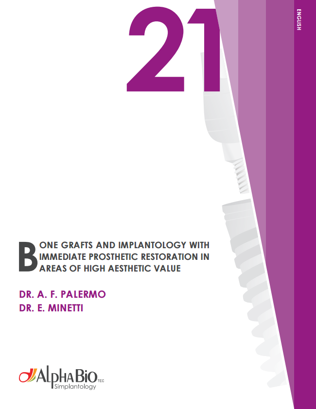 Bone Grafts and implantology with immediate prosthetic restoration in areas of high aesthetic value_en