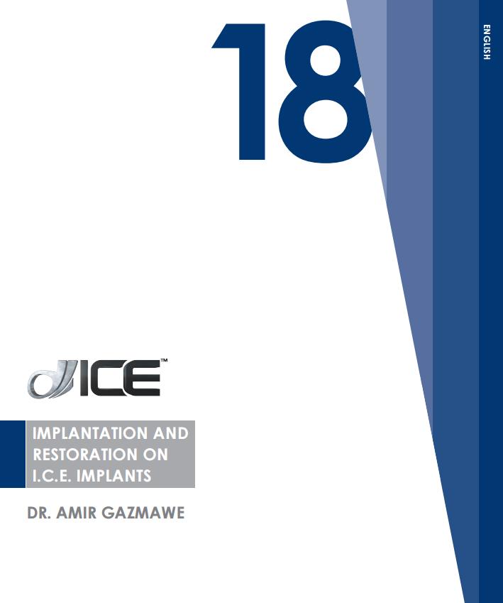 Implantation and restoration on I.C.E. implants_en